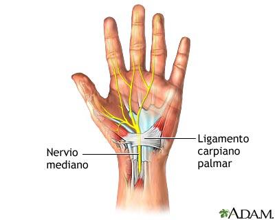 MedlinePlus Enciclopedia Médica: Reparación quirúrgica del túnel ...