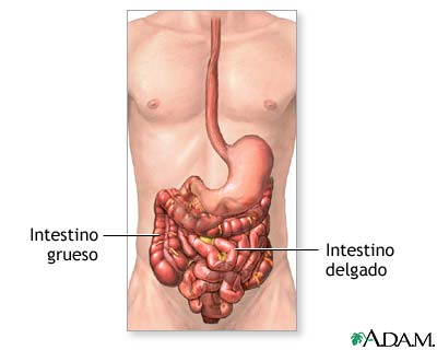 MedlinePlus Enciclopedia Médica: Obstrucción intestinal - Serie ...