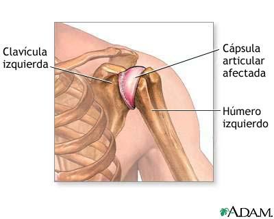 MedlinePlus Enciclopedia Médica: Inflamación de la articulación del ...